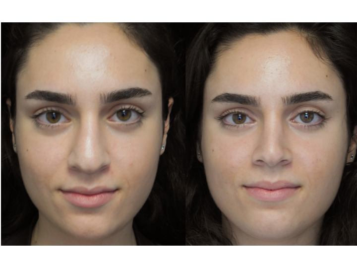 before and after photo of a woman who underwent a bulbous tip surgery