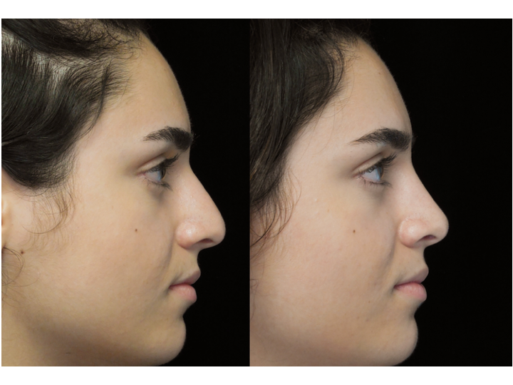 a woman with a bulbous tip who underwent a bulbous tip reduction