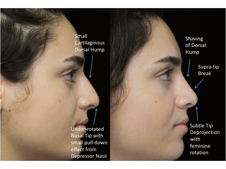 Illustration of a woman who underwent bulbous nasal tip rhinoplasty