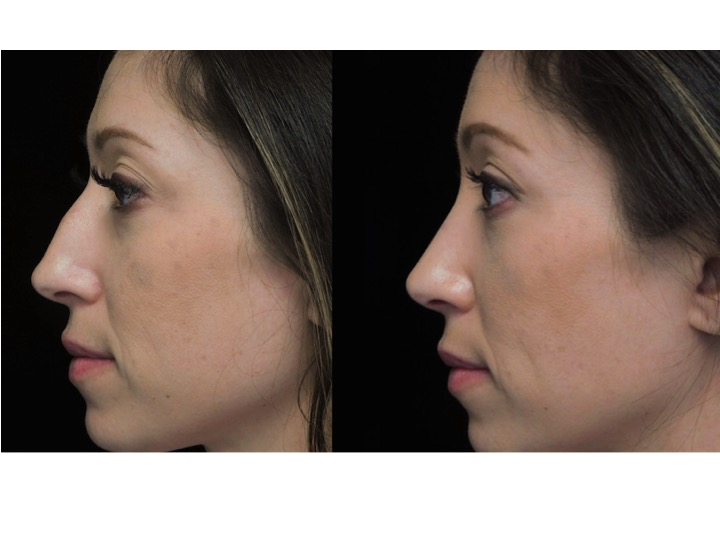 a woman with a bulbous tip who underwent a bulbous nose reshaping