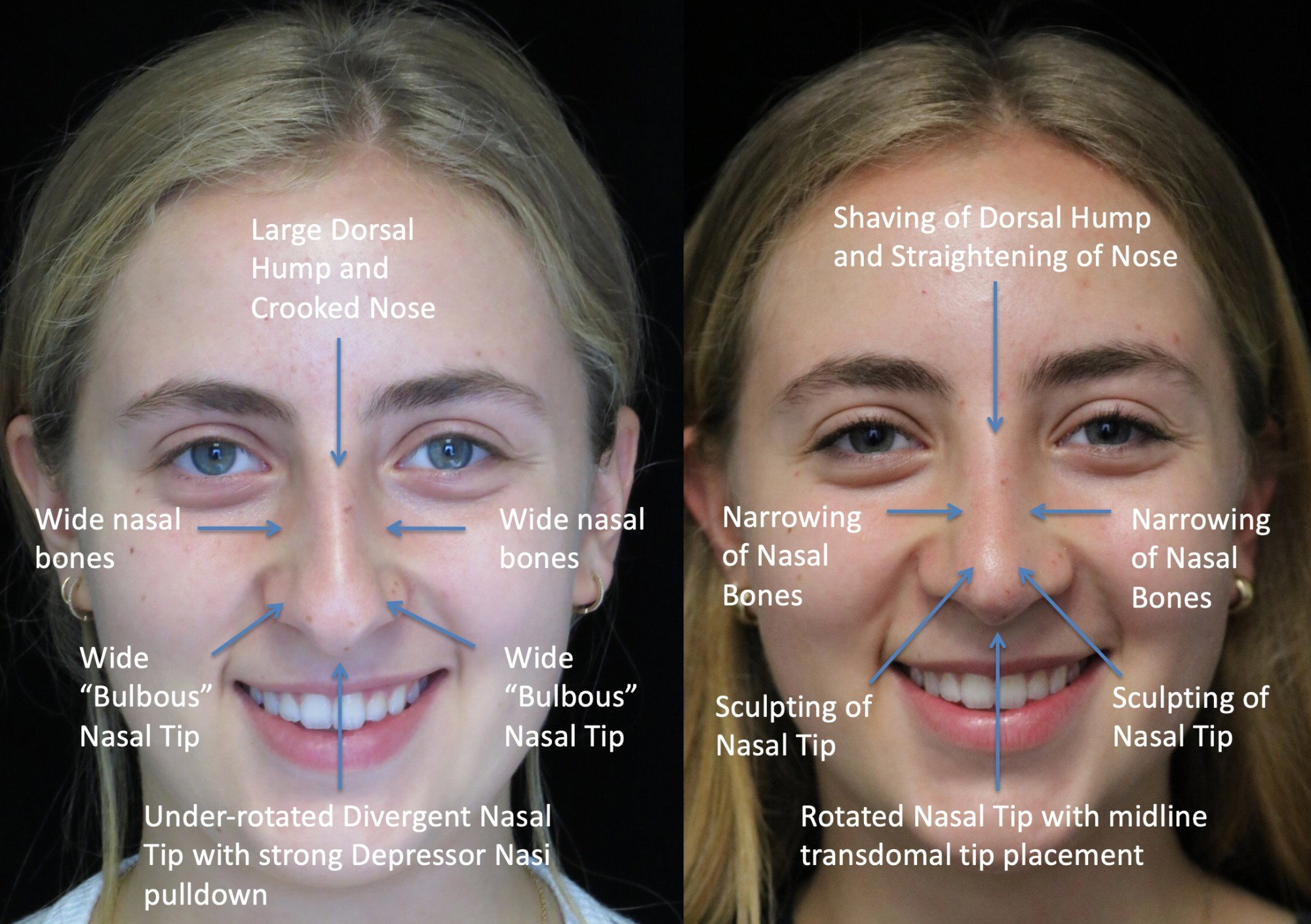 nose job before and after of a female with crooked nose