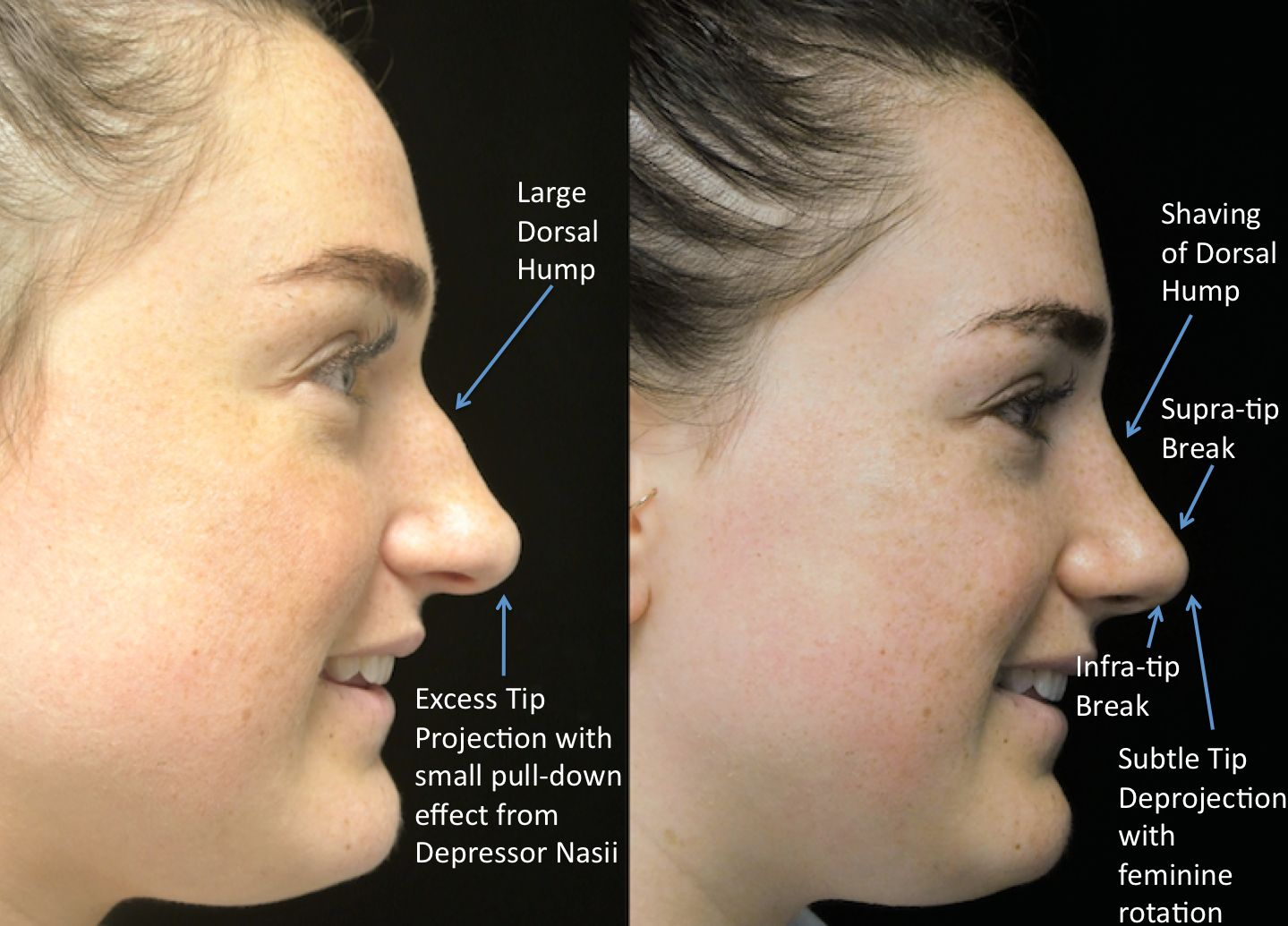 a woman who underwent rhinoplasty before and after illustration