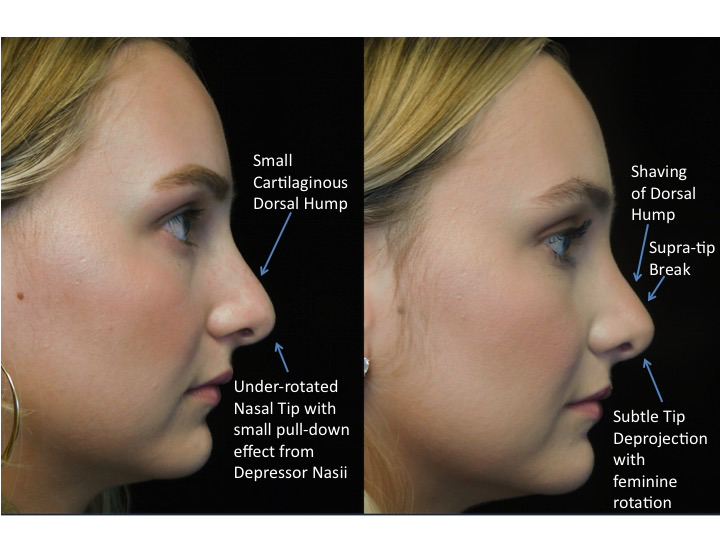 closed rhinoplasty before and after illustration of a woman with wide bulbous nasal tip