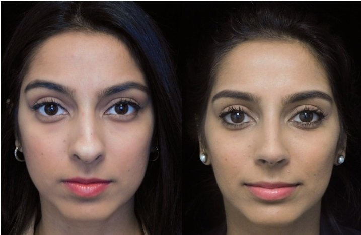 Indian or South Asian nonsurgical rhinoplasty patient
