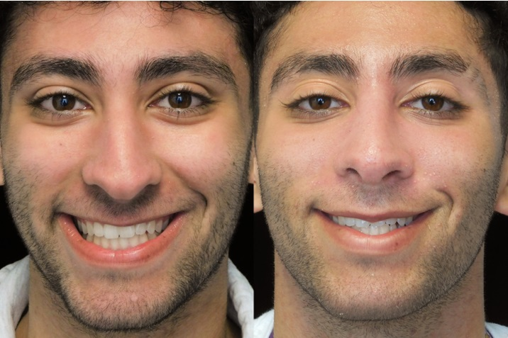 Male bulbous tip rhinoplasty patient