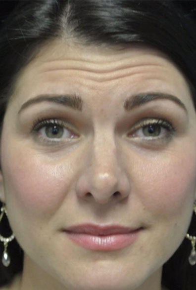 before photo of a non-smiling female patient who underwent botox anti aging