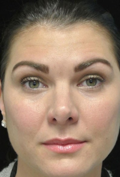 after photo of a non-smiling female patient who underwent botox anti aging