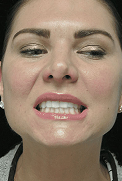 after photo of a smiling female patient who underwent botox anti aging