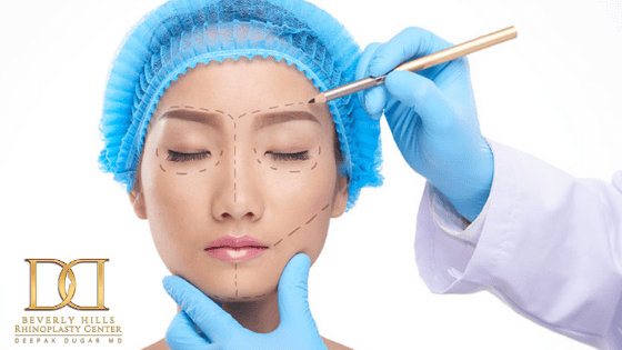 California top plastic surgeon decoding the process of scarless rhinoplasty to a female patient