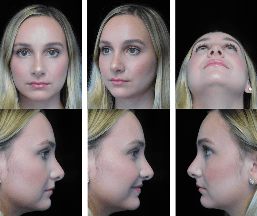 six photos of a woman on different angles after scarless rhinoplasty