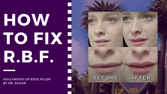 "before and after photo of a woman who underwent lip filler with a text beside it ""how to fix R.B.F"""