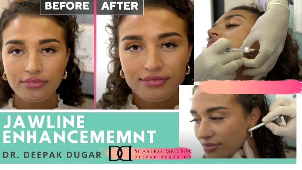 female patient photos before, during and after chin enhancement