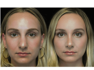 before and after photo of patient who underwent non surgical nose job