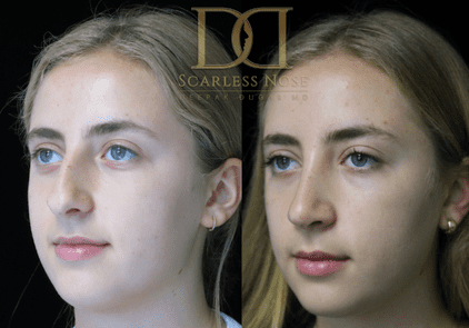 before and after photo of a patient who underwent scarless rhinoplasty