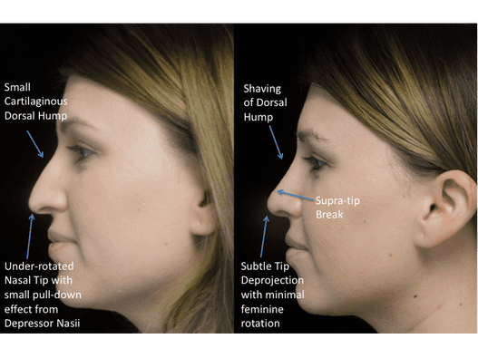 before and after photo with illustration of a female patient facing right who underwent non surgical rhinoplasty