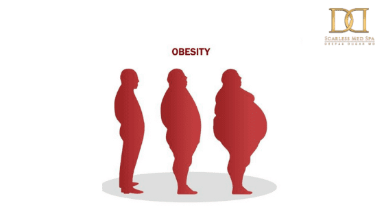 poster of a man gaining weight
