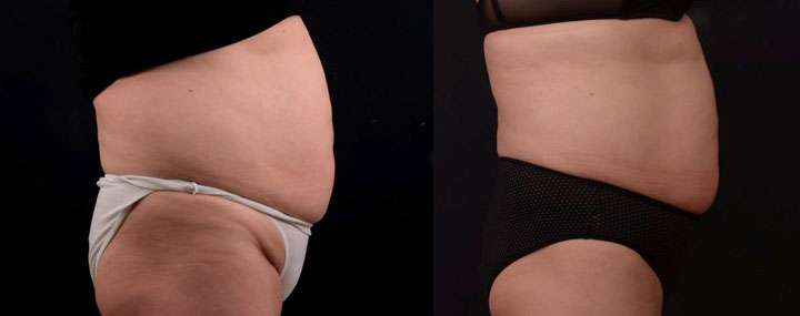 before and after side view close up photo of a female's abdomen that is flatter after a non surgical laser fat melting