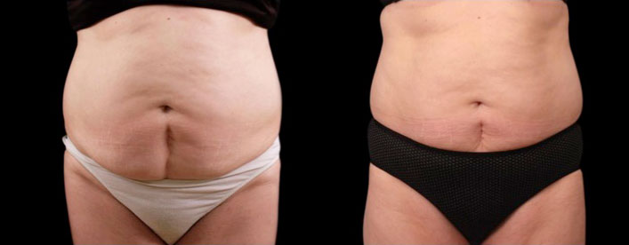 before and after close up photo of a female abdomen after 6 sessions of non surgical laser fat melting