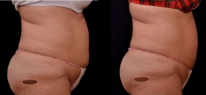 before and after left profile view photo of a female's abdomen that is flatter after 6 sessions of non surgical laser fat melting