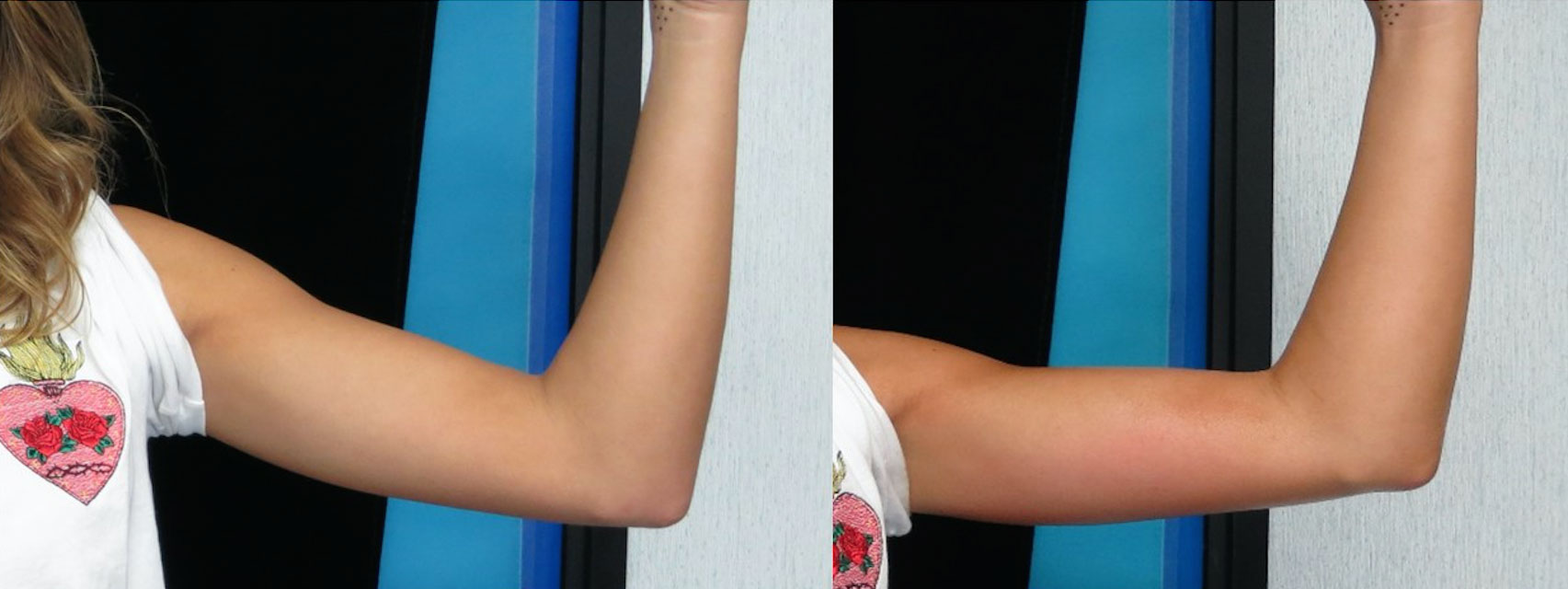 before and after photo of a female patient's left arm that is flatter after 4 sessions of non surgical laser fat melting