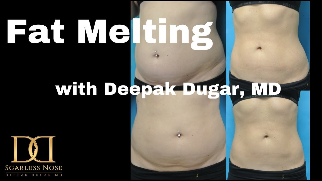 before and after photos of a female patients stomach after a non-surgical fat melting