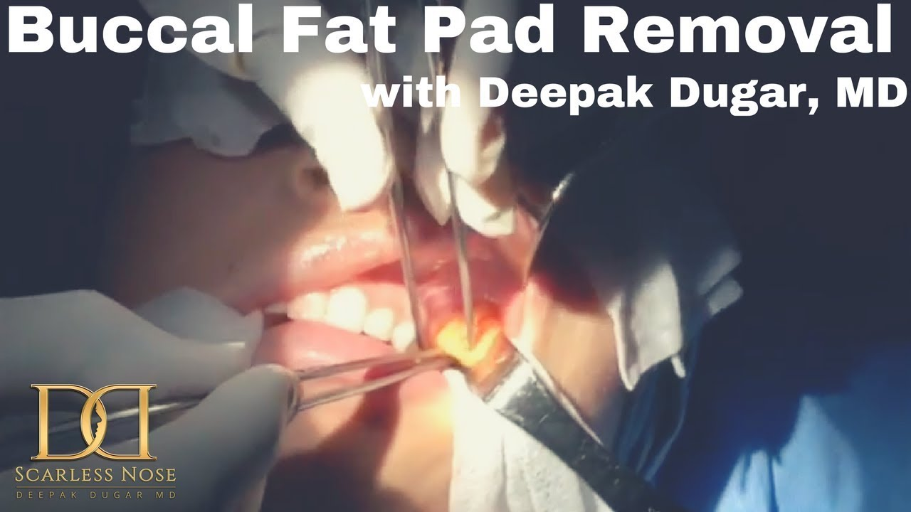 youtube thumbnail about buccal fat pad removal cheeks video
