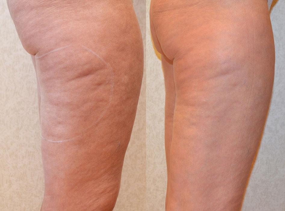 before and after photo of a female patient's thigh on a right profile view with a reduced cellulite after a non surgical stretch mark reduction