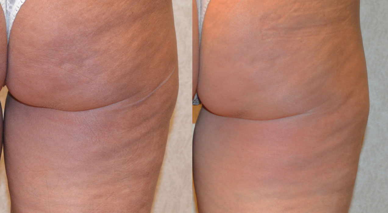 before and after photo of a female patient's thigh on a turned back view with a reduced cellulite after a non surgical stretch mark reduction