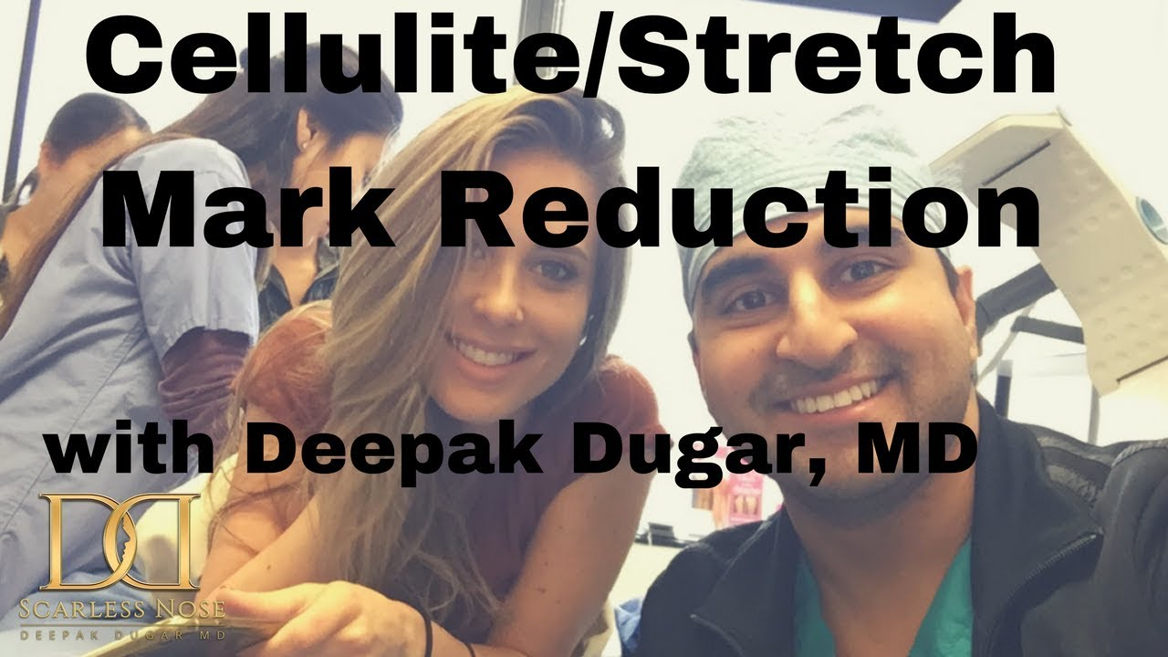 picture of Dr Dugar and his female patient who underwent cellulite/ stretch mark reduction