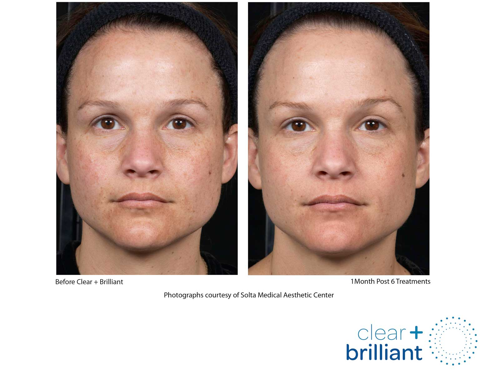 before and after photo of a female patient's face with a clearer and smoother skin after a red carpet laser facial
