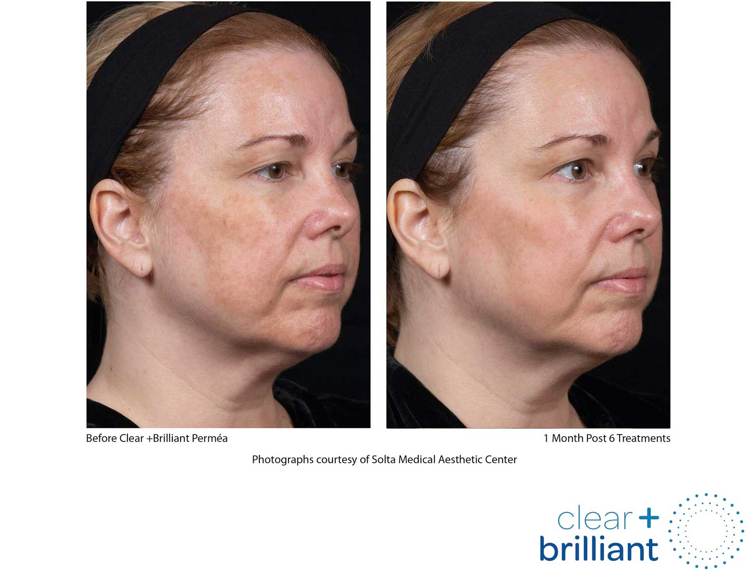before and after photo of a female patient's face with an even skin tone and reduced sunspots after a red carpet laser facial