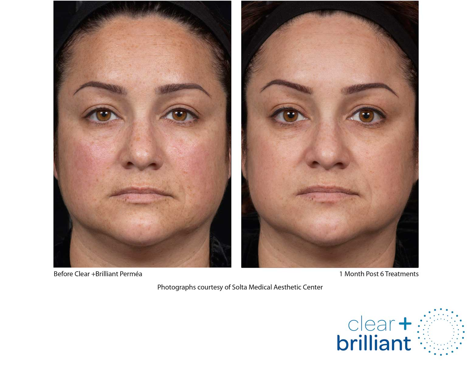 before and after photo of a female patient's face with a smoother skin after a red carpet laser facial