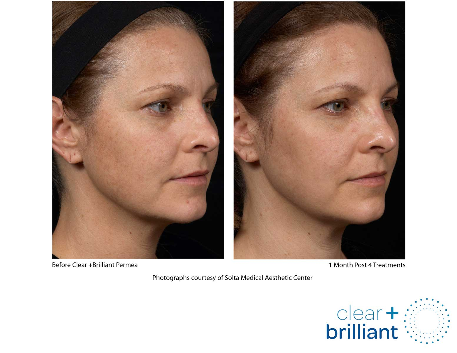 before and after photo of a female patient's face with a reduced sunspots after a customized laser facials