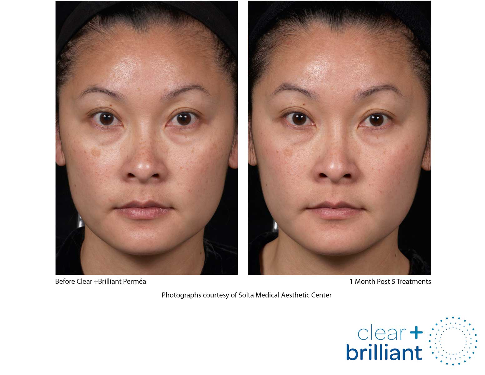 before and after photo of a female patient's face with a smoother skin and reduced sunspots after a red carpet laser facial