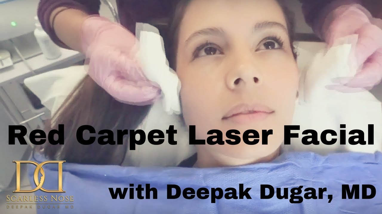 Youtube thumbnail of Dr Dugar's video about his female patient who underwent red carpet laser facial