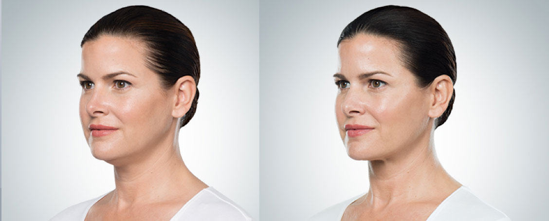 before and after photo of a ponytailed female patient who underwent 4 sessions of Kybella for double chin melting