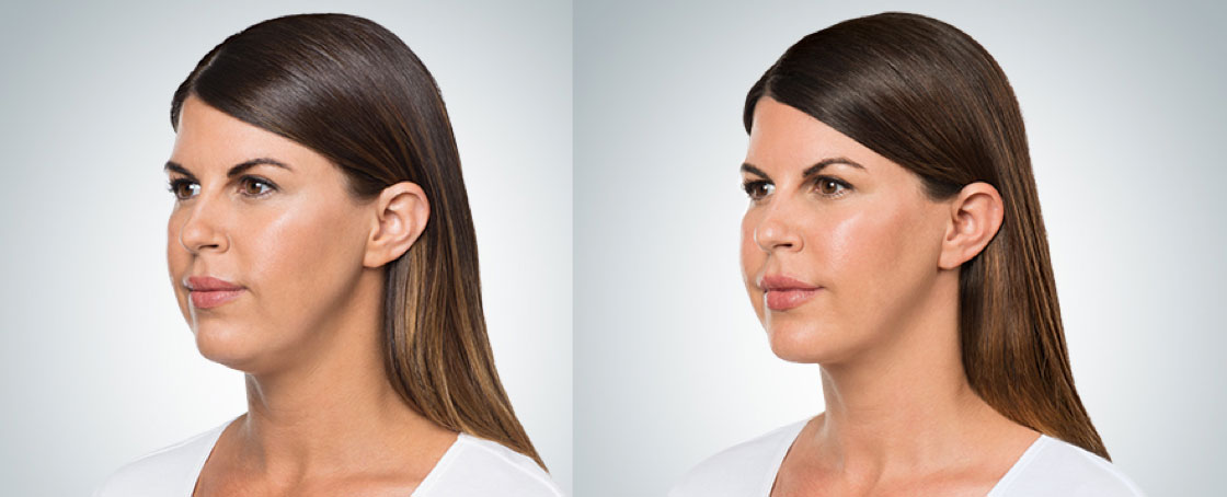 before and after photo of a long-hair female patient who underwent 4 sessions of Kybella for double chin melting