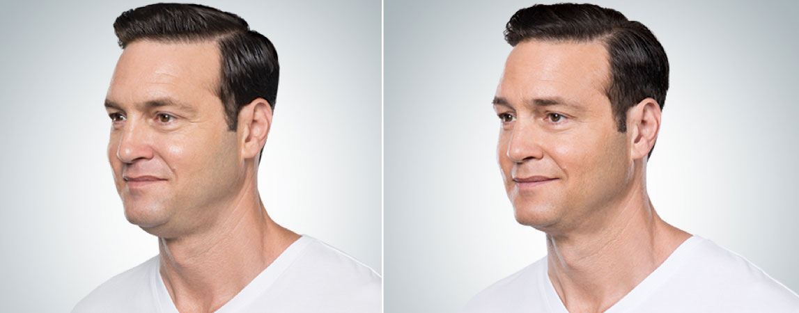 before and after photo of a male patient who underwent 4 sessions of Kybella for double chin melting
