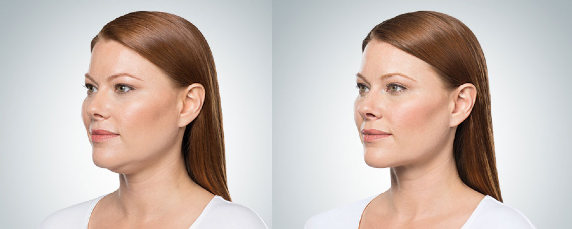 before and after photo of a female patient who underwent 3 sessions of Kybella for double chin melting