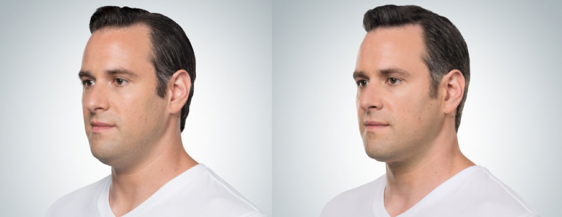 before and after photo of a male patient who underwent 6 sessions of Kybella for double chin melting