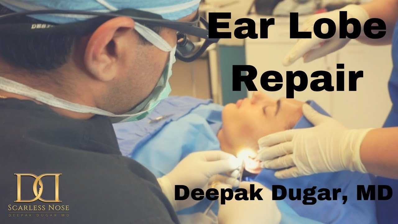 Dr Dugar doing an earlobe repair to his female patient