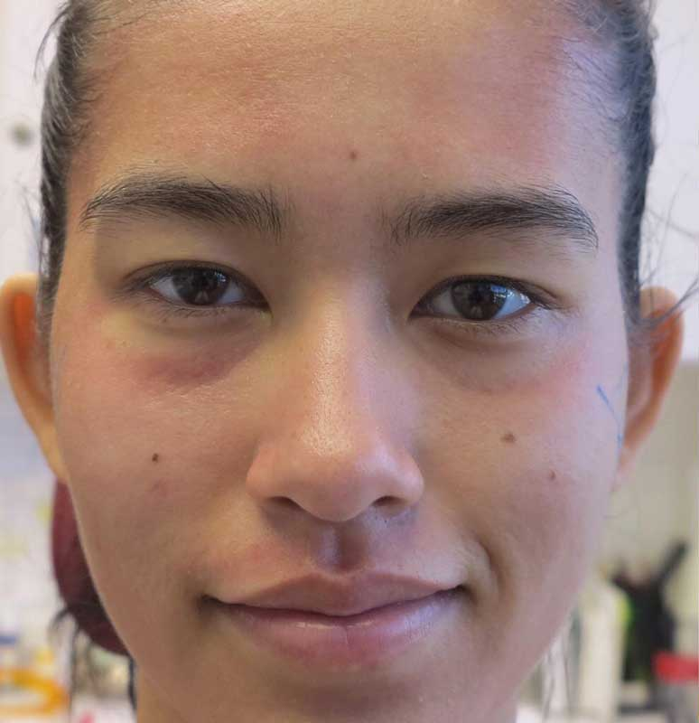 before frontal view photo of a female patient's face who underwent non surgical facial contouring