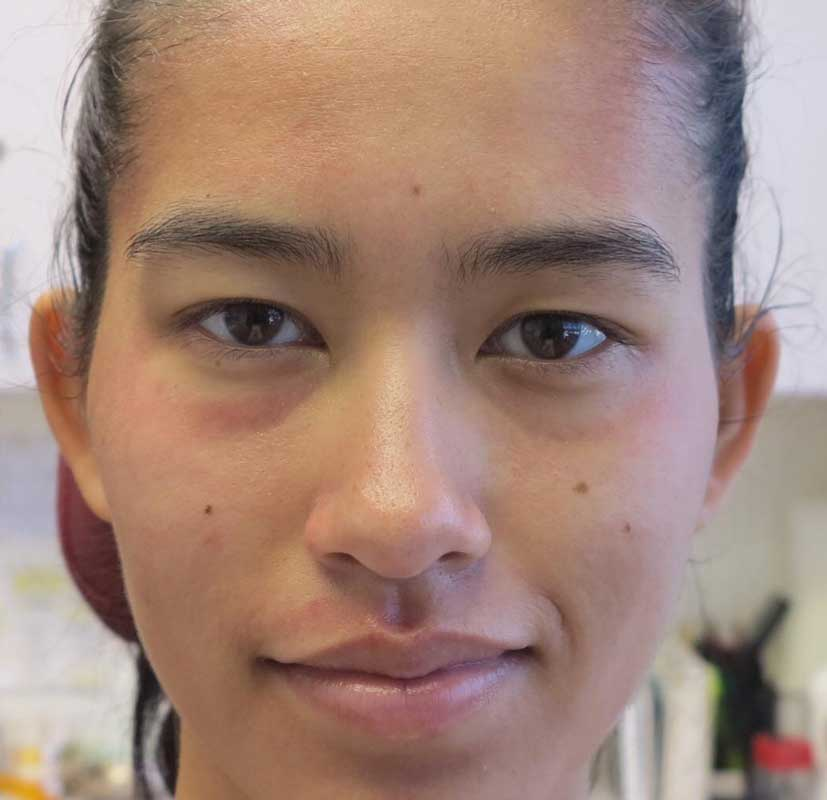 after frontal view photo of a female patient's face who underwent non surgical facial contouring