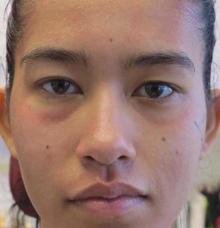 before frontal view photo of a female patient's face who underwent non surgical facial fillers