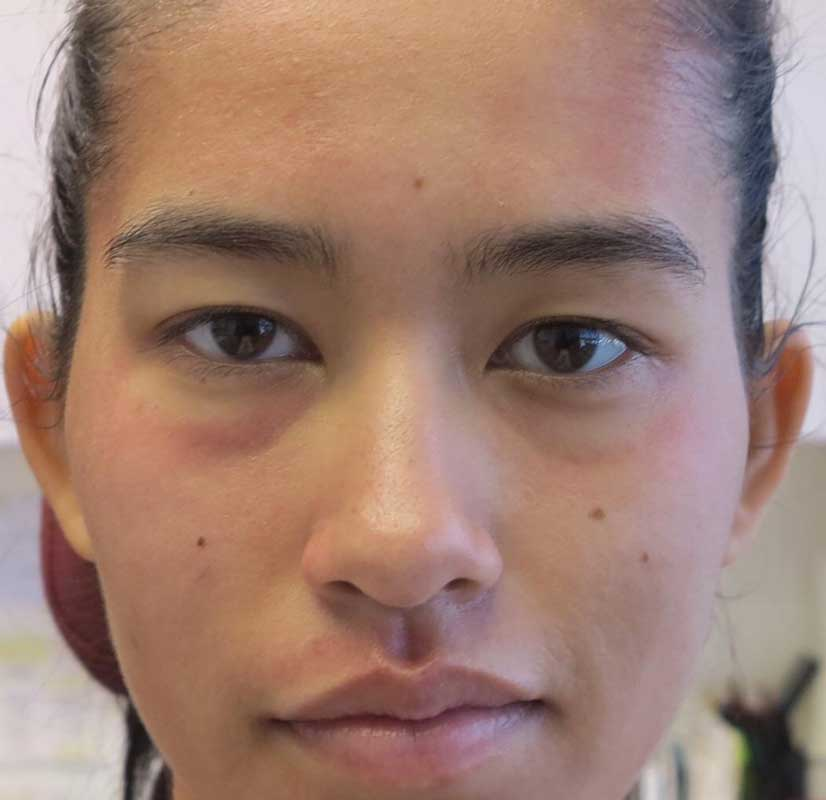 after frontal view photo of a female patient's face who underwent non surgical facial fillers