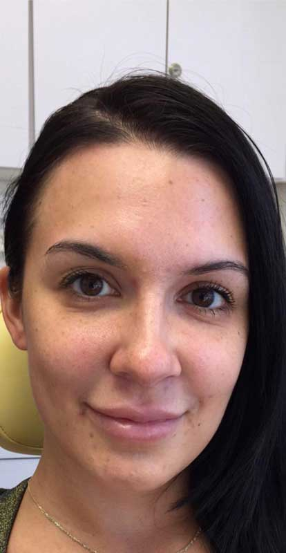 before close up frontal view photo of a female patient's face who underwent non surgical facial fillers