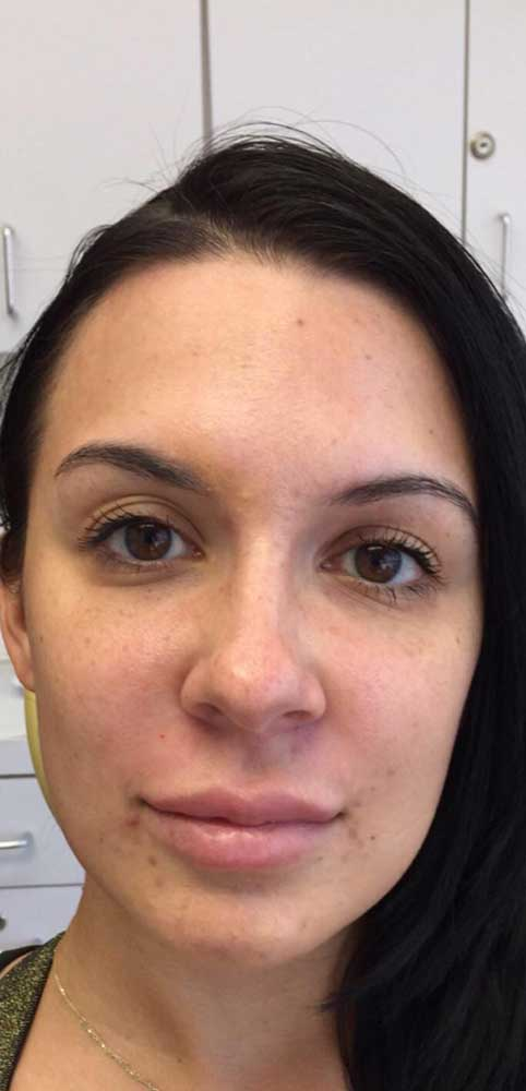after close up frontal view photo of a female patient's face who underwent non surgical facial fillers