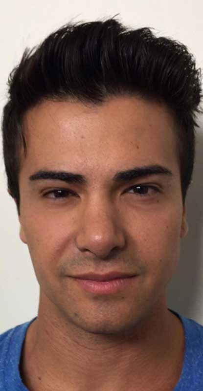 after frontal view photo of a male patient's face who underwent non surgical facial contouring