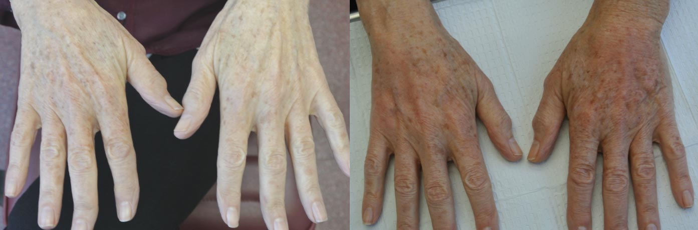 before and after photo of on old lady's hand who underwent hand reuvenation