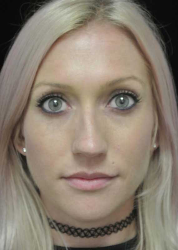before photo of a female patient who underwent a lip enhancement